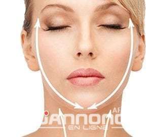 lifting-cervico-facial-france-tunisie-300×270-1