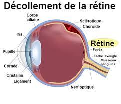 decollemnt-de-retine0
