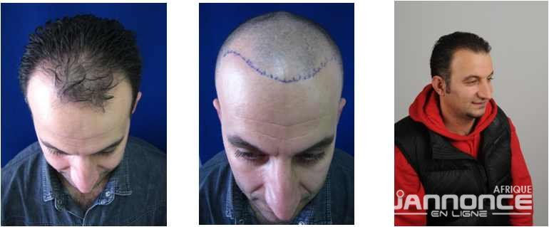 greffe-de-cheveux-2
